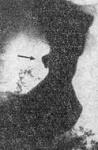 yazva-1.jpg