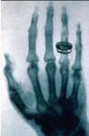 pervaya_rentgenogramma.jpg