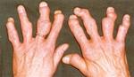 psoriatic_arthritis_mutilans..jpg