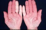 Ишемия пальцев