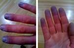 Цианоз пальцев