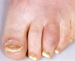 sausage_toes_with_associated_nail_dystrophy..jpg