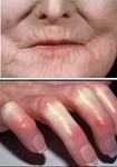 Характерные изменения при склеродермии: «клювовидный нос», «кисетные» складки вокруг рта, «барабанная» натянутая кожа, нарушение кровотока в пальцах рук