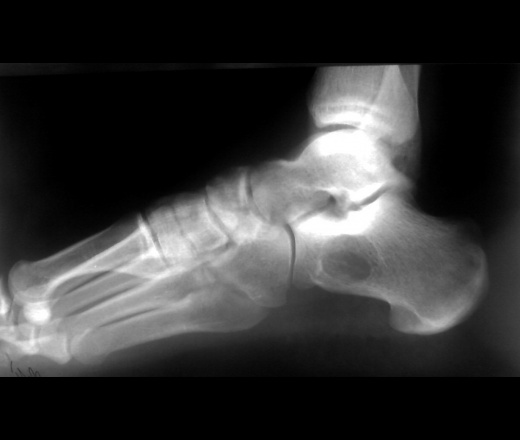 Rtg пяточной кости (дилемма) | Портал радиологов