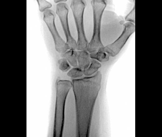 Лучезапястный сустав перелом вывих плечевого сустава лечение в домашних условиях
