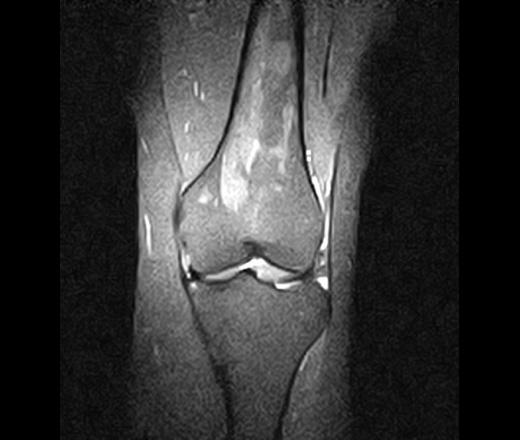 Реконверсия костного мозга коленного сустава лечение парафином суставы противопоказания