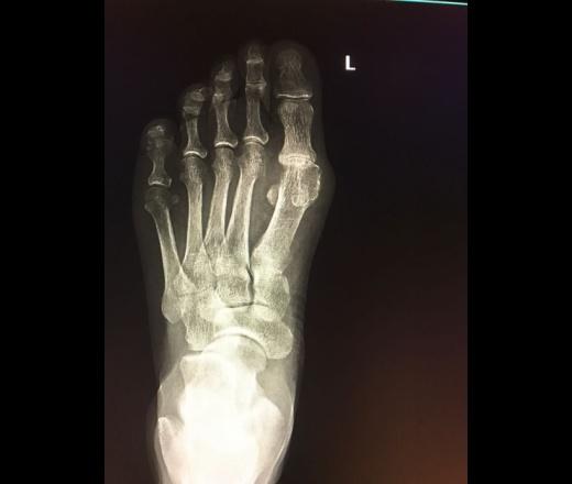 Артрит второго плюснефалангового сустава лечение фото
