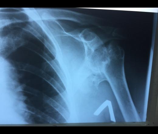 Изображение - Асептический некроз головки плечевого сустава img_7564