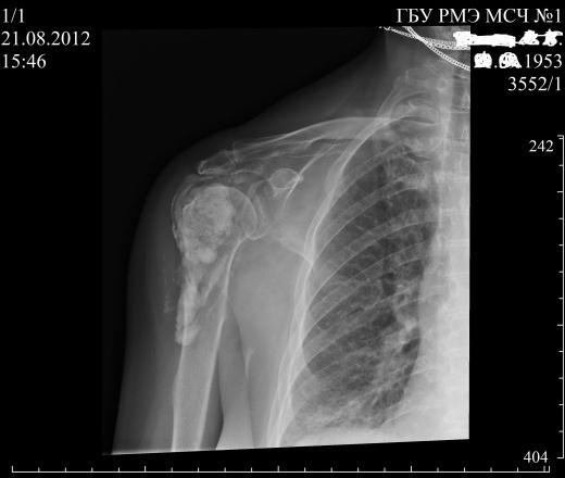 R-графия плечевого сустава болезнь суставов среднеазиатская овчарка