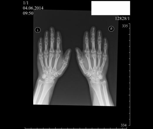При р-графии грудного отдела позвоночника в 2-х проекциях рентгенологом был