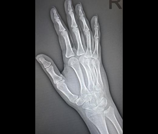Радикален артрит