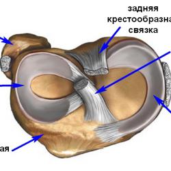 Заострение межмыщелковых возвышений коленного сустава что это