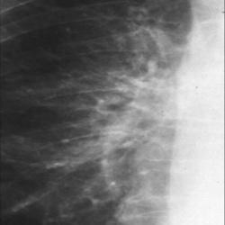 Острый бронхит рентгенологическая картина
