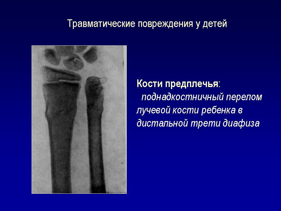 Перелом диафиза лучевой кости