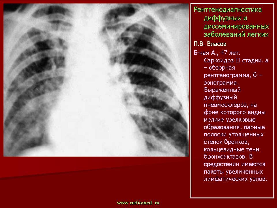 Диффузно очаговый пневмосклероз