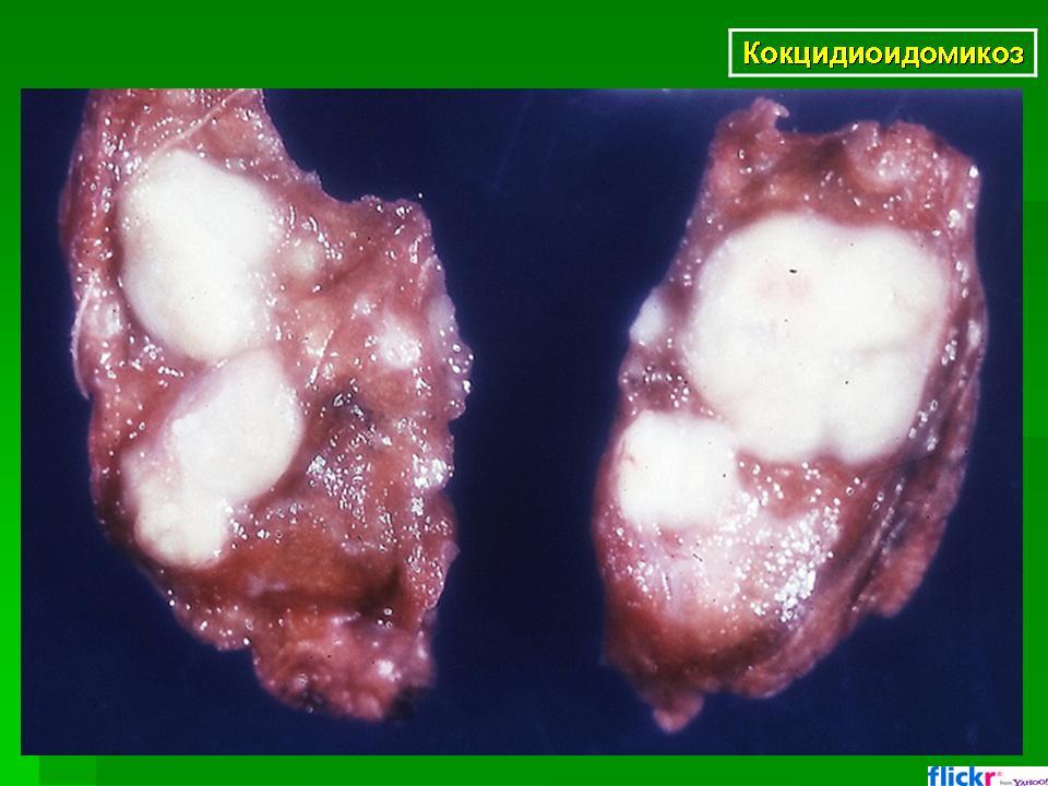 Кокцидиоидомикоз