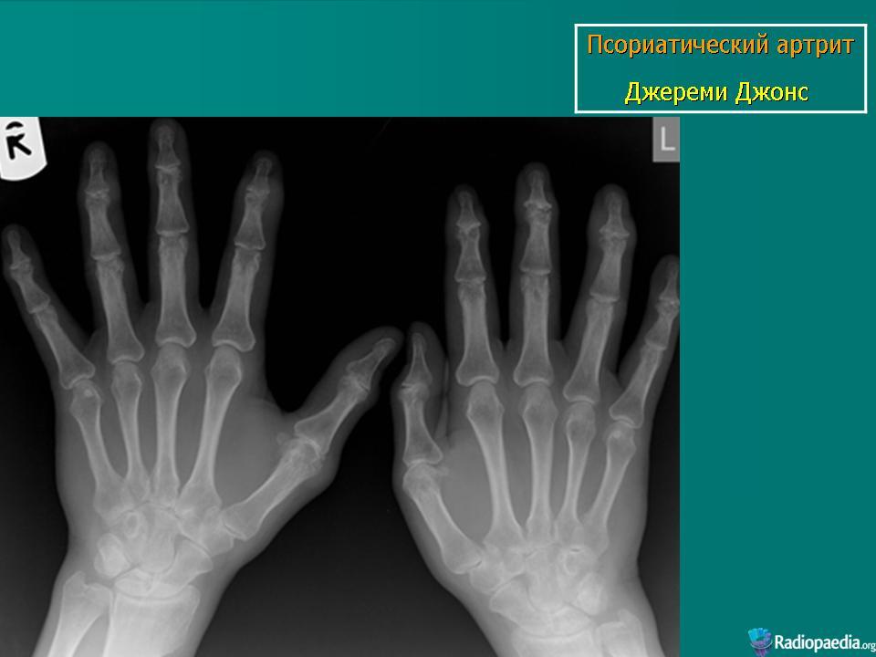 Псориатический артрит - причины, симптомы, диагностика и лечение