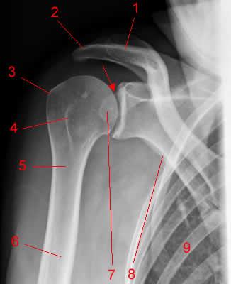 Артроз плечевого сустава причины, симптомы