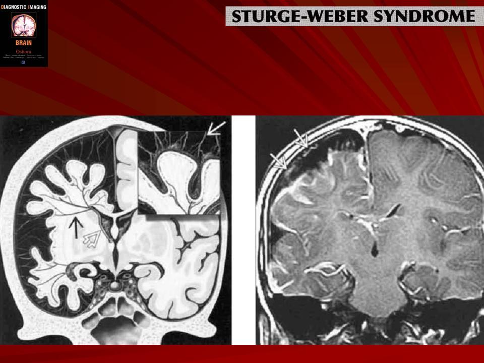 Синдром Стерджа-Вебера
