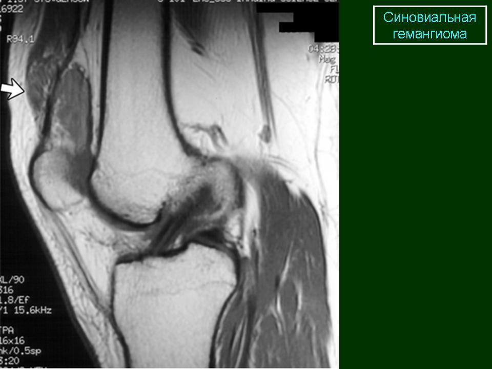 Гемангиома коленного сустава разгружающий тазобедренный сустав майнцевский