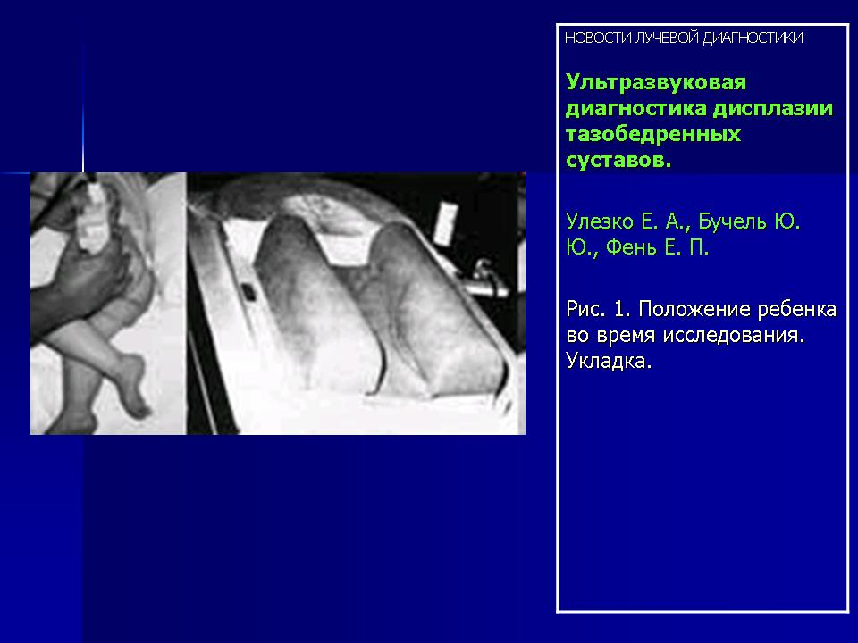 УЗИ Ультразвуковая диагностика дисплазии тазобедренных суставов  Таким образом ультразвуковой метод исследования тазобедренных суставов обладает высокой чувствительностью и специфичностью и может заменить или дополнить