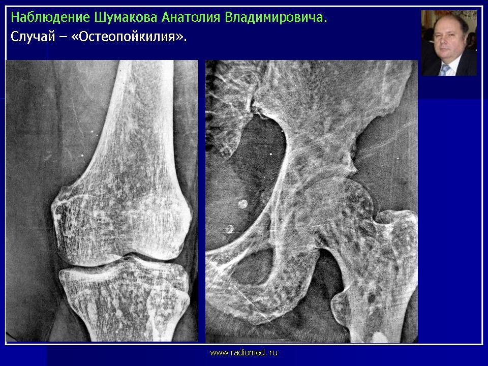 остеопатия что это значит