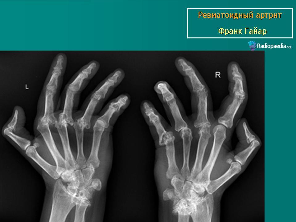 Рентгенограмма артрита