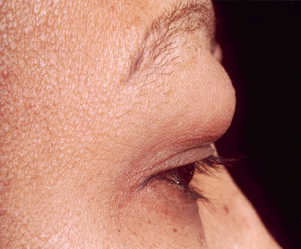Кокцидиоидомикоз фото