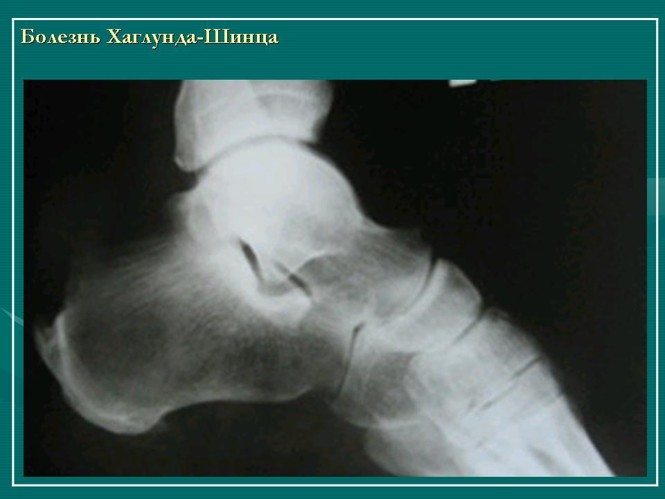 Боль в спине слева под лопаткой при выдохе