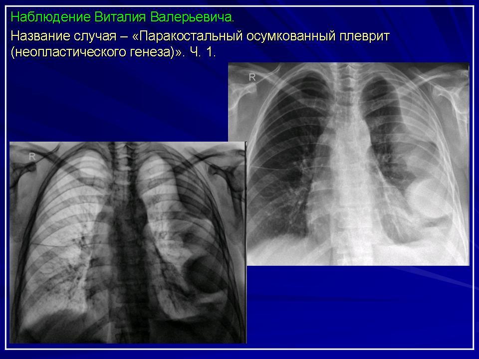 Что Является Рентгенологическим Признаком Осумкованного Плеврита