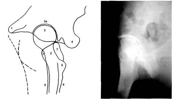 Боковая проекция тазобедренного сустава надкопытный сустав у лошади