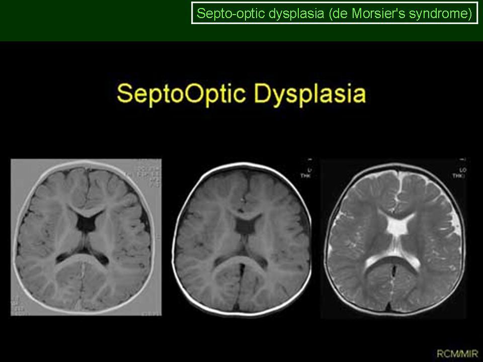 Атипичная дисплазия костного мозга