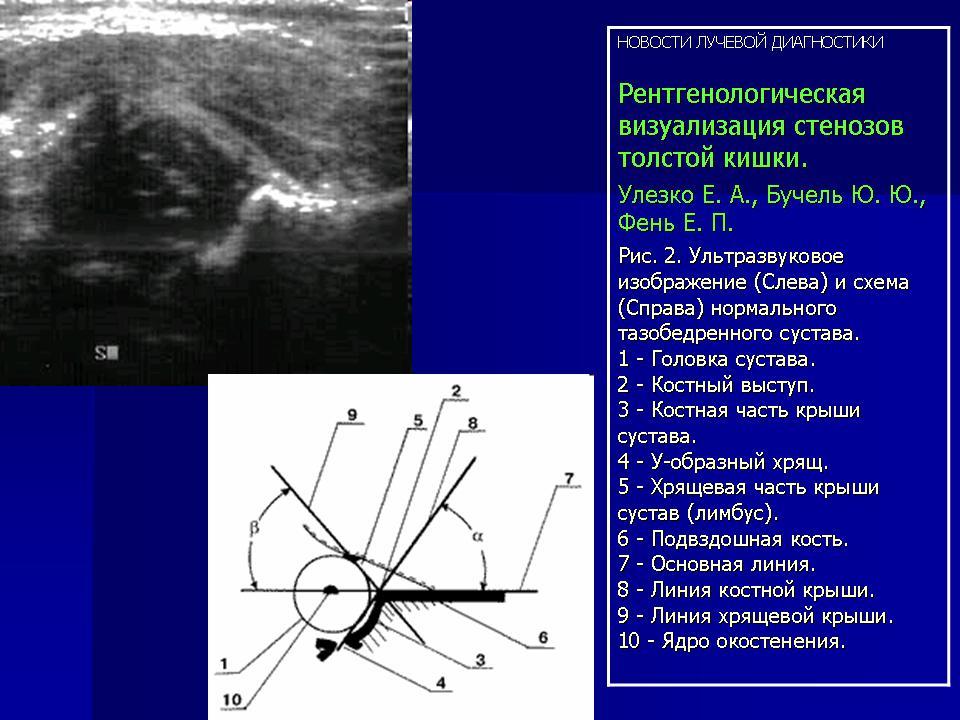 Улезко е.а.дисплазия тазобедренных суставов узи суставные мази тенториум