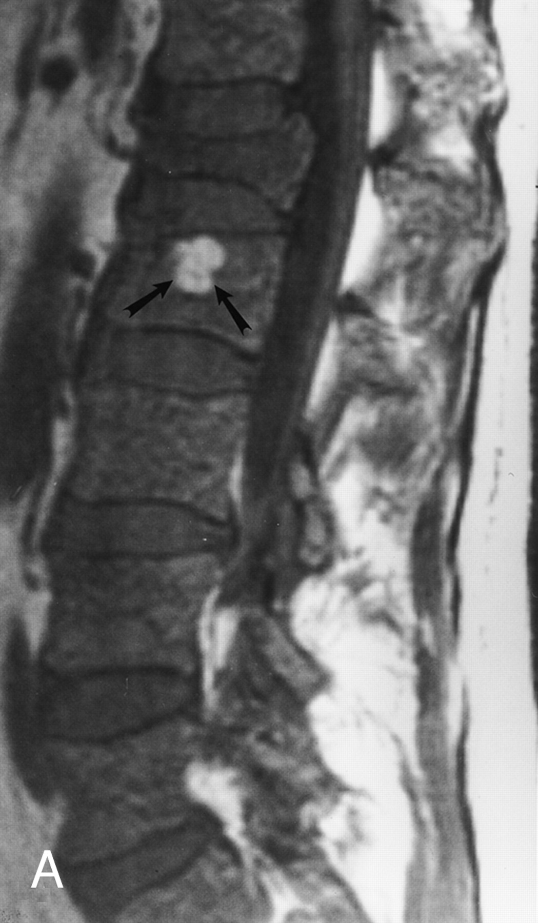Плазмоцитома фото