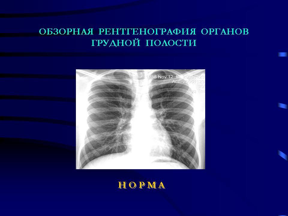 рентгенография органов грудной клетки в выходной в новосибирске ребенку