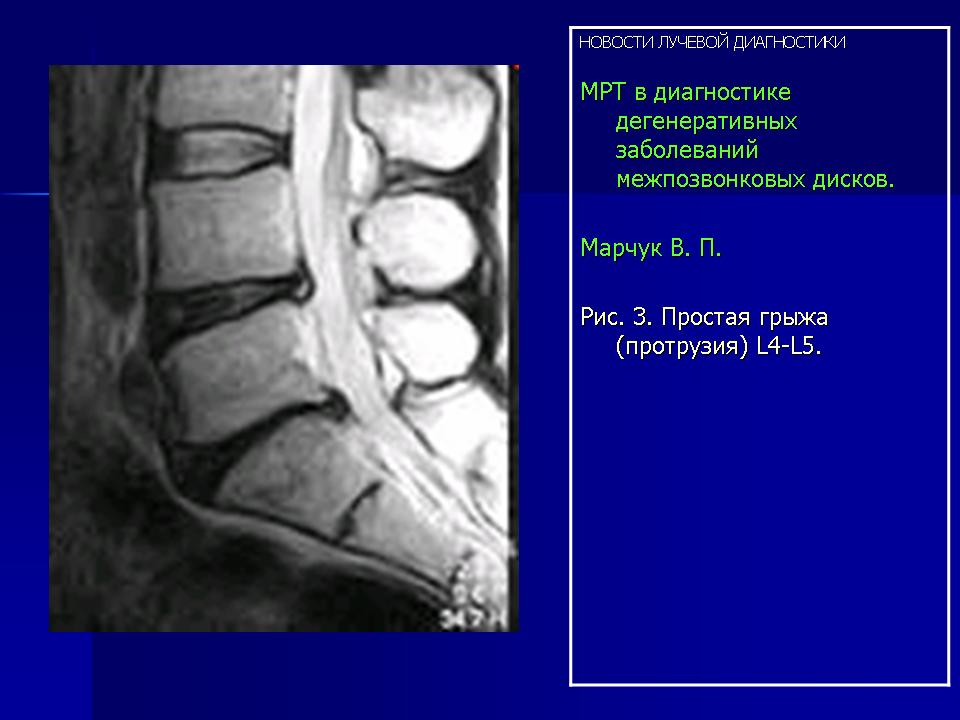Томография (МРТ) головного мозга - Скандинавия