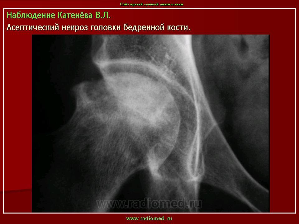 Клиновидная остеохондропатия суставной поверхности мыщелка бедренной кости периартрит коленного сустава симптомы