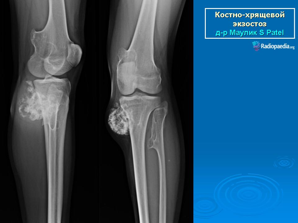 ортез на коленный сустав orlett silver line lux