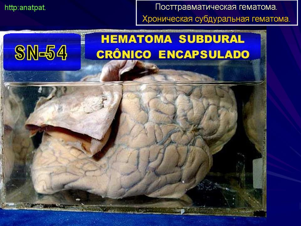 Dating subdural hematoma mri - Dating new mexico