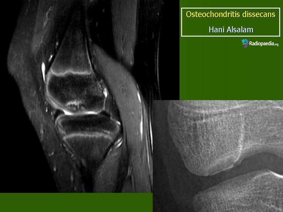 osteochondrosis dissecans homöopathie