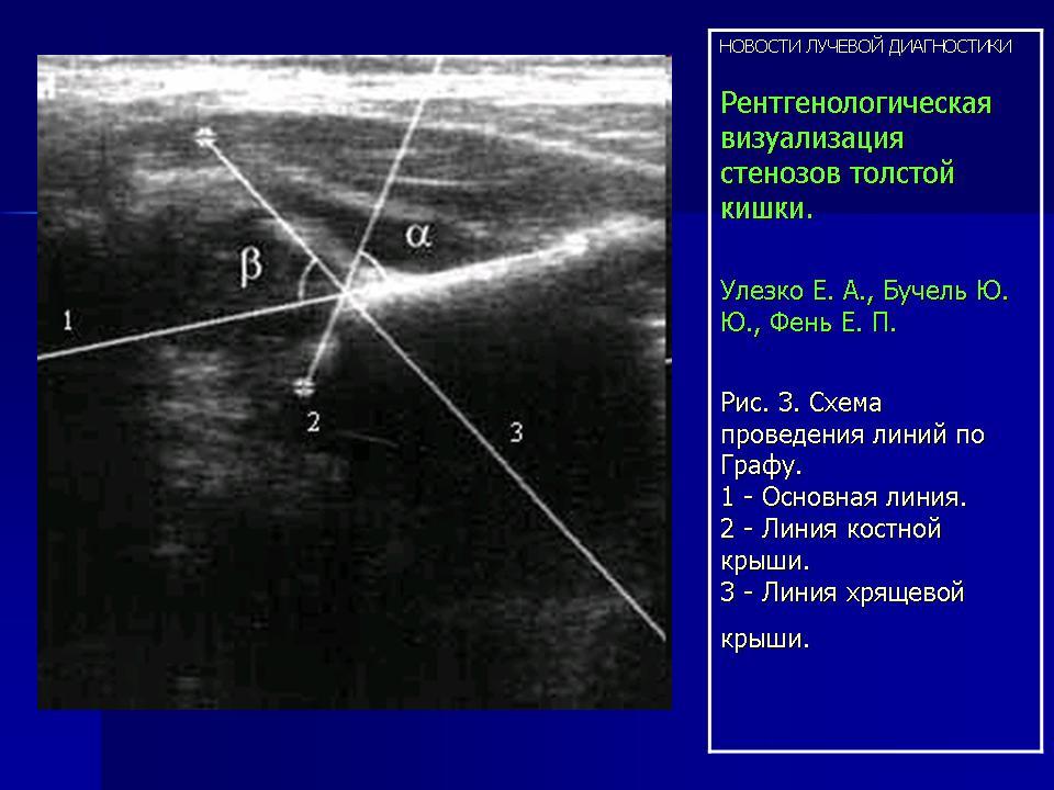 Улезко е.а.дисплазия тазобедренных суставов узи артрофит для лечения суставов где купить