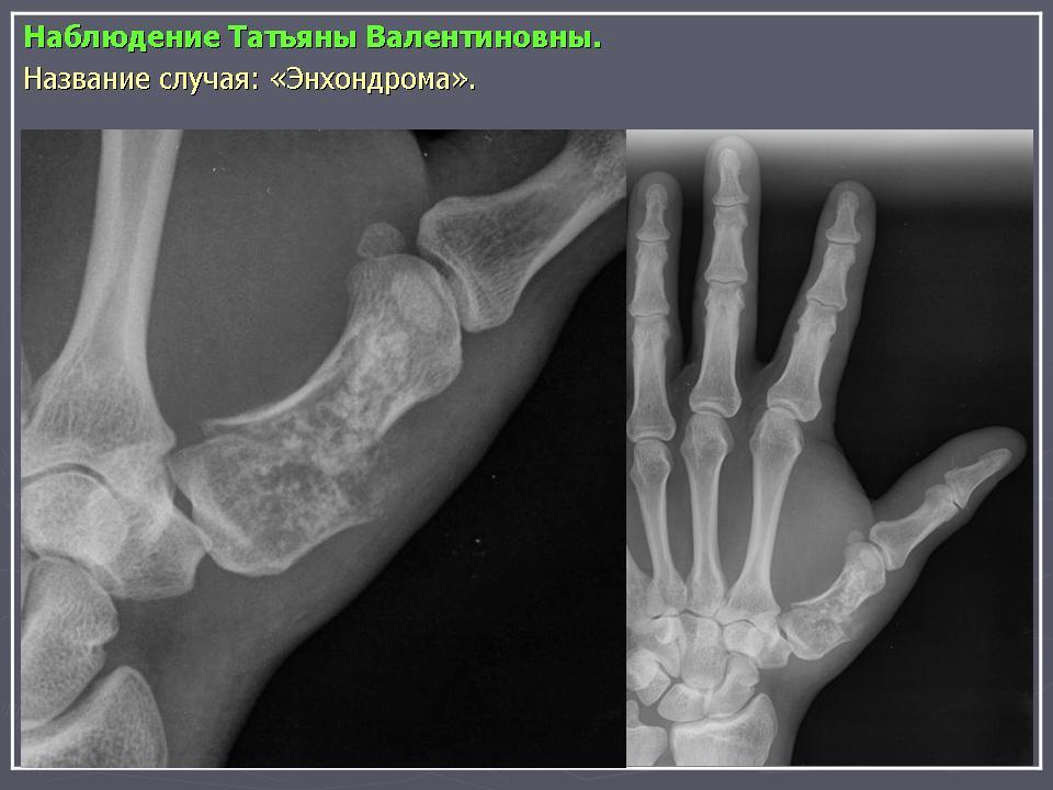 Пальцы Стопы Килевидные