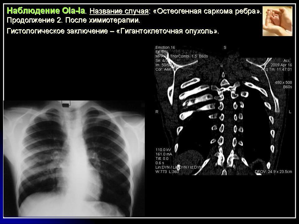 Онкология К Гигантоклеточная опухоль Портал радиологов А В Русаков 1959 установил что это образование является истинно опухолевым и обосновав свой взгляд на клеточные элементы опухоли как на