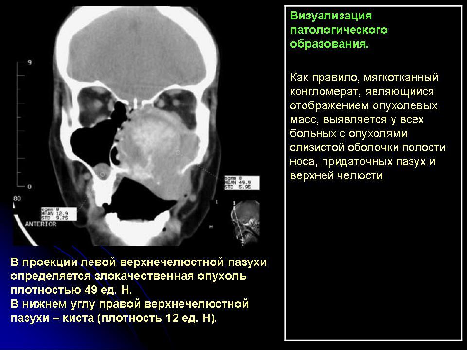 Компьютерная томография придаточных пазух носа цена