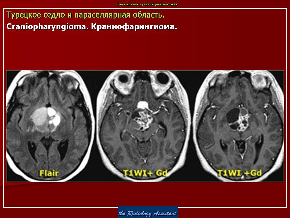 Краниофарингиома