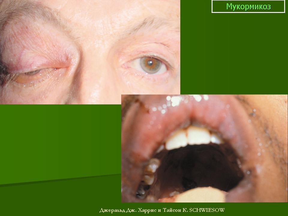 Артрит сустава стопы фото симптомы лечение