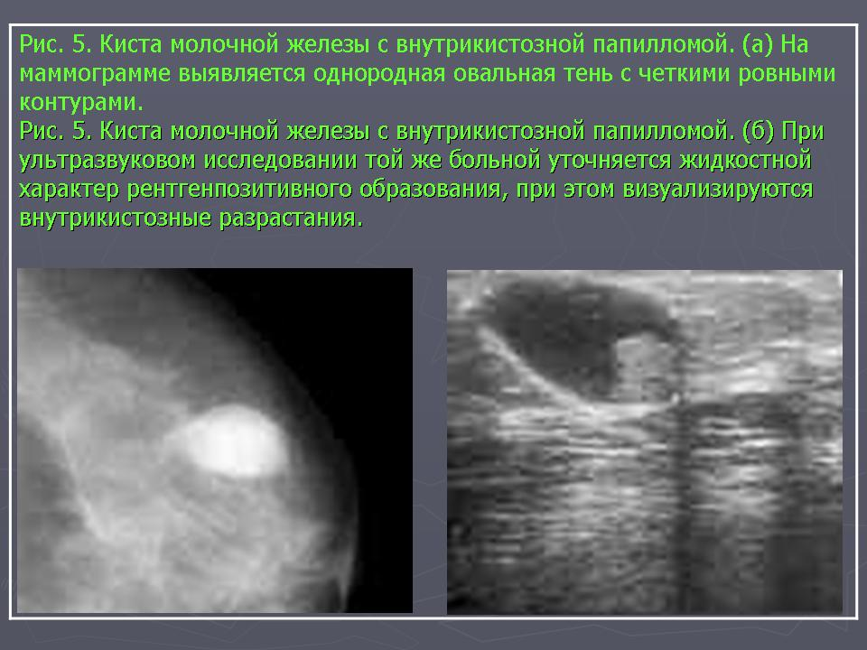 Темное пятно на маммографии