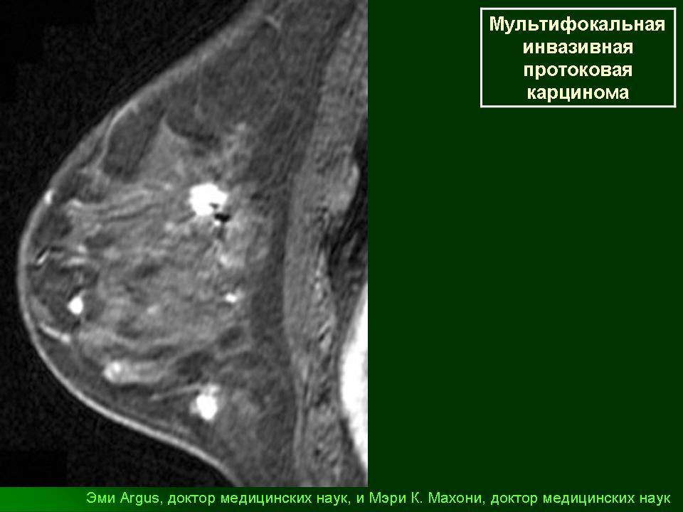 Компьютерная томография молочной железы