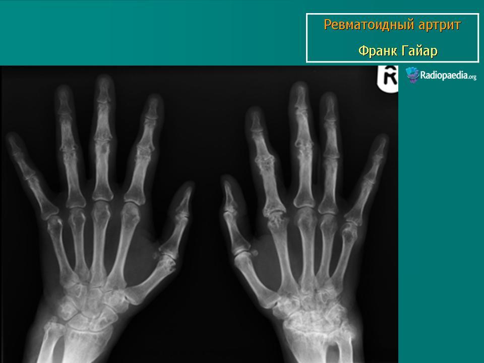Рентгенологическая картина суставов при инфекционном артрите переломы и вывихи плечевого сустава