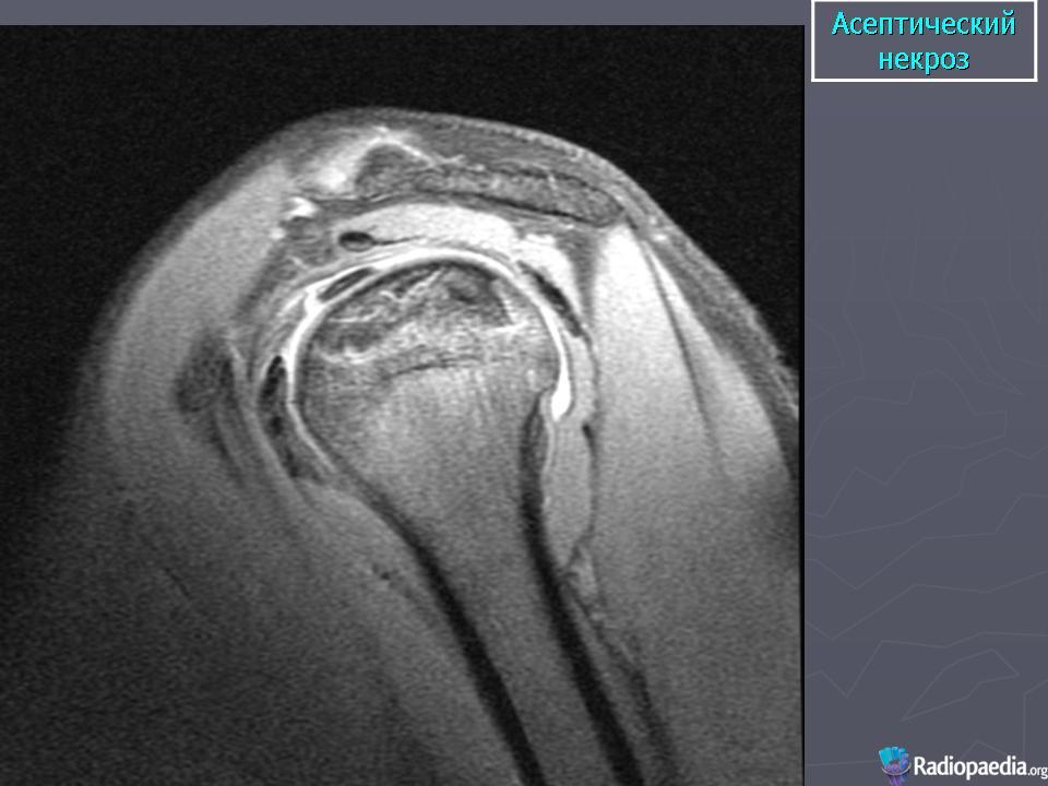 Округлый участок склероза в суставном отростке лопатки операция голеностопный сустав отзывы